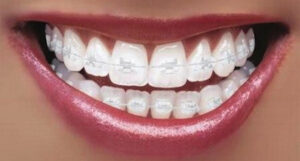 Brooklyn NY Ceramic Braces