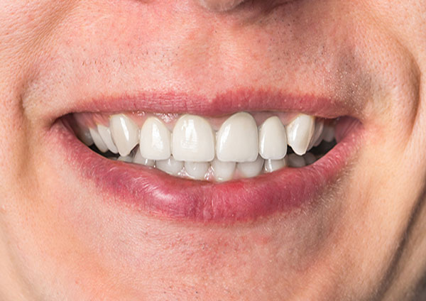 After-Dental Implants
